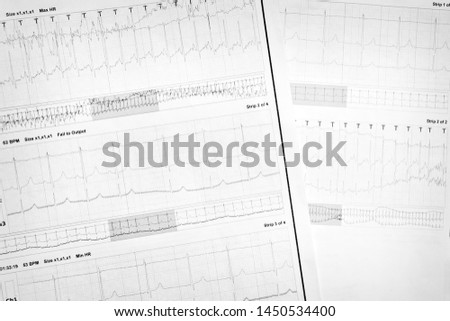 the results of cardiac examinations #1450534400