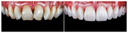 14 unit zirkon based press ceramic crowns , before and after the treatment