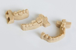 Upper and lower jaws dental bridge printed on 3D printer from a photopolymer material  on white background Stereolithography 3D printer, technology of liquid photopolymerization under UV light.