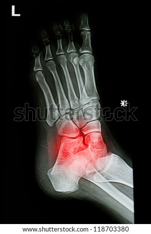 x-rays image of  the painful or injury ankle and foot