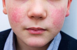 8 years old child with red cheeks- enterovirus infection, diathesis or allergy symptoms. Redness and peeling of the skin on the face.