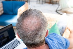 A balding man sits outside with a laptop, little hair, alopecia on the crown. Top view. Concept of hair loss in middle aged men.