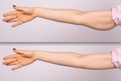 A before and after comparison of a young Caucasian woman who had a brachioplasty. Corrective arm lift surgery which removes the sagging fat layer from the triceps area.