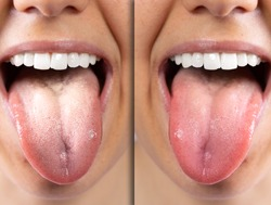 A before and after view of on the tongue of a Caucasian girl, she sticks her tongue out to reveal oral thrush on the left. Then on the right she is free from the fungal infection.