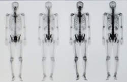 A bone scan or nuclear scan image of a patient showing normal skeleton of the whole body without bone or soft tissue metastasis or active bone tumor.