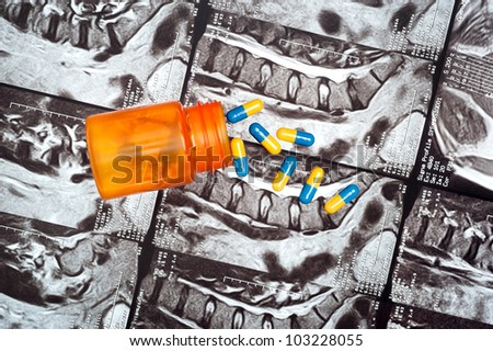 A bottle of pain medication spilled on a MRI image of a patient's spine.  This is a concept of how drugs are used to remedy medical conditions.