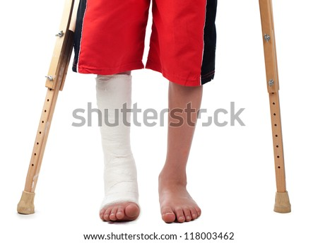 A boy with a right leg fracture struggles to walk with two crutches.