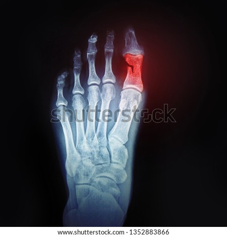 A broken toe. X-ray of the foot with the designation of the sore spot. Bone and joint health, concept