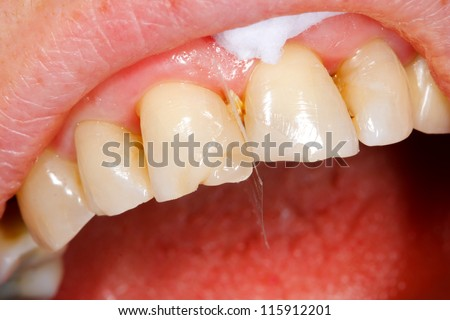 A broken tooth 's treatment with composite filling material - almost finished.