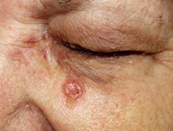 A case of nodular basal cell carcinoma