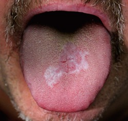 A case of reticular form of oral lichen planus affecting the tongue of a male.