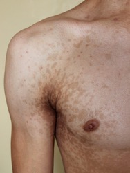 A case of tinea versicolor (pityriasis versicolor) in a young male.
