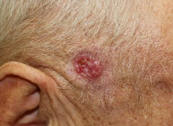 A case of ulcerated nodular basal cell carcinoma