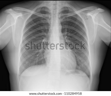 A chest x-ray image for a medical diagnosis.