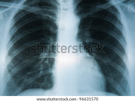 A Chest X-ray image, medical consultation.