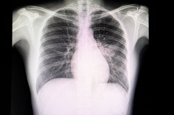 A chest xray film of a patient with pneumonia or pneumonitis.  The patient has alveolar infiltration in the left middle lungs. Pulmonary tuberculosis,SARS-CoV-2 virus covid-19 infection.