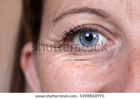 A close up and front view on the blue eye of a mature caucasian woman in her forties, showing heavy wrinkles (crow's feet) in the corner and below the eye, with copy-space.