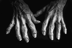 A close up black and white image of an elderly woman's arthritic hands. She is wearing a diamond ring and her knuckles are swollen. Her nails are nicely painted.