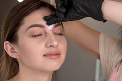 A close-up of a girl in a beauty salon who has extra hair removed between her eyebrows. Waxing. Service in the beauty salon