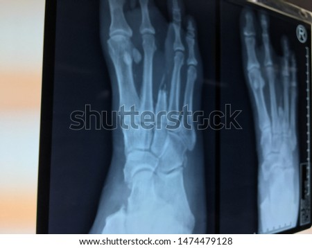A close up of an AP X-ray film of bilateral foot after post operation rays amputation #1474479128