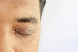 a close up of man face with eczema problem, having dry and flaky skin around eyes, forehead and neck area. Atopic dermatitis symptom skin.