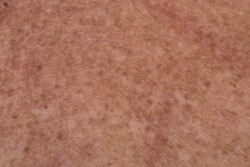 A close up skin section with light colored scattered hair and red bronze color