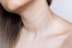 A close-up view of a young woman's neck and chest. Lines on the neck. Wrinkles, age-related changes, rings of Venus, goosebumps