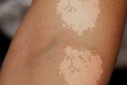 A closeup view on the arm of a person suffering from tinea versicolor, a fungal infection of malassezia globosa, causing patches of skin discoloration.