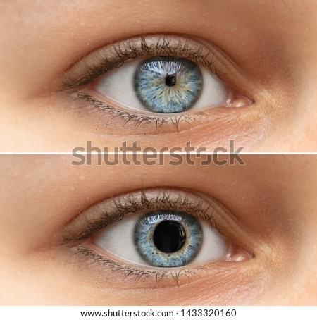 A closeup view on the blue eyes of a pretty young woman. Collage comparing the black pupil, one image shows an enlarged pupil and one shows a reduced pupil. Pupillary light reflex in humans.