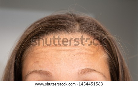 A closeup view on the forehead and hairline of a young Caucasian woman with light brown hair and tanned skin. Wrinkles are seen in the forehead.