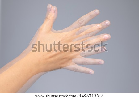 A closeup view on the shaking hand of a person suffering from Parkinson's disease. A progressive and incurable ailment of the central nervous system. #1496713316