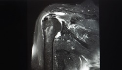 A coronal view magnetic resonance image or MRI of shoulder showing partial tear of supraspinatus tendon. The tendon is a part of rotator cuff. Patient may needed arthroscopic surgery.