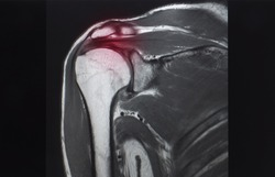 A coronal view of magnetic resonance image or MRI of shoulder showing rotator cuff tendon tear. Red highlight focused on the tear tendon. the patient has chronic shoulder pain.