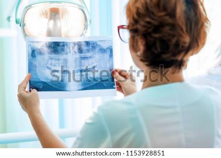 A dentist examines orthopantomogram in her hands