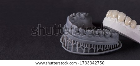 A digital model printed on a 3d printer and an analog model cast from gypsum. pressed ceramics veneers are designed based on a digital model.