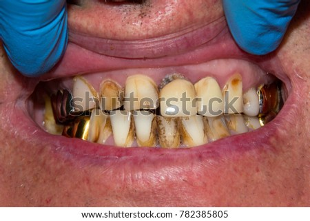 a diseased oral cavity with rotten decayed carious teeth, dental plaque from cigarettes and old iron crowns and seals