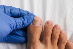 A doctor examines bare foot with onycholysis on a toenail after damaging with tight shoes or using gel-lacquer