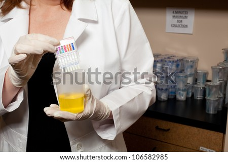 A Doctor Holding A Urine Sample Stock Photo 106582985 ...