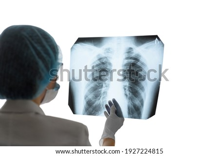 A female doctor or radiologist examines a chest x-ray of a patient in a hospital. Pulmonology and cardiothoracic surgery concept. Control and monitoring of diseases of the lungs and respiratory organs Foto stock ©