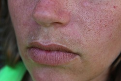 A female face with melasma present above the upper lip. Melasma, also known as mask of pregnancy or sun mustache, is common in pregnant woman due to hormonal changes or increased sun exposure.
