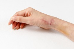 A fresh healing scar one month after surgery on tendons and radial nerve. Scar care. Female hand lying white linen background