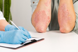 A gloved dermatologist examines the skin of a sick patient and records observations. Examination and diagnosis of skin diseases-allergies, psoriasis, eczema, dermatitis.