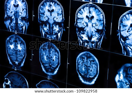 A group of CAT scans of the human brain closeup