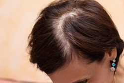 A high angled and closeup view on the top of the head of a lady with brown hair. A large parting runs along the head showing the thinning and aging process.