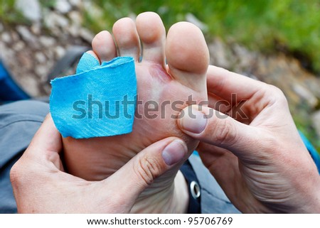 A hiker is inspecting a foot blister.