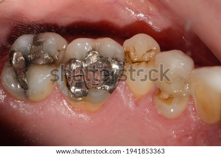 A large amalgam or metal-mercury fillings on molar teeth and premolar tooth fracture Stock photo ©