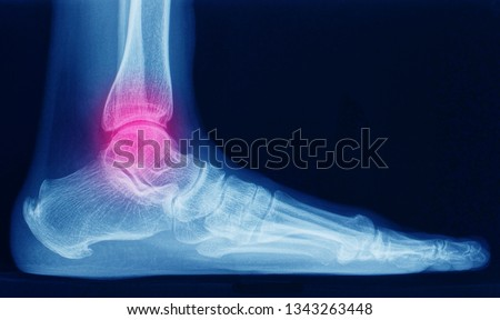a lateral x-ray or radiograph of an ankle showing anatomy of bones and joint of ankle and foot in a patient with ankle sprain. the red highlight focused on the ankle joint.  Stock photo ©