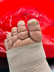 A left foot of an unidentifiable person with significant lymphedema. The toes with macerated  and hyperkeratic skin are visible and the mid foot has a compressive dressing on it, covering cellulitis.
