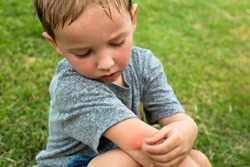 A little boy scratching his arm from a red mosquito bite after playing outdoor in the tropical summer time.