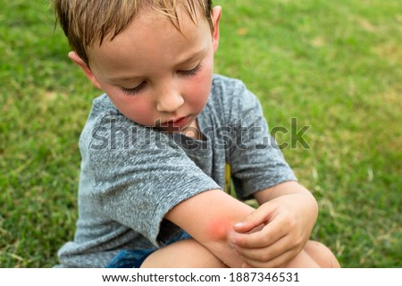 A little boy scratching his arm from a red mosquito bite after playing outdoor in the tropical summer time. Photo stock ©